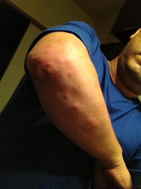 蚊に刺されまくった腕